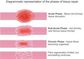 Hot or Cold Therapy for Soft Tissue Injuty - explained in diagrammatic form