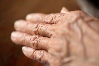 Senior Woman's Arhtritic Hand