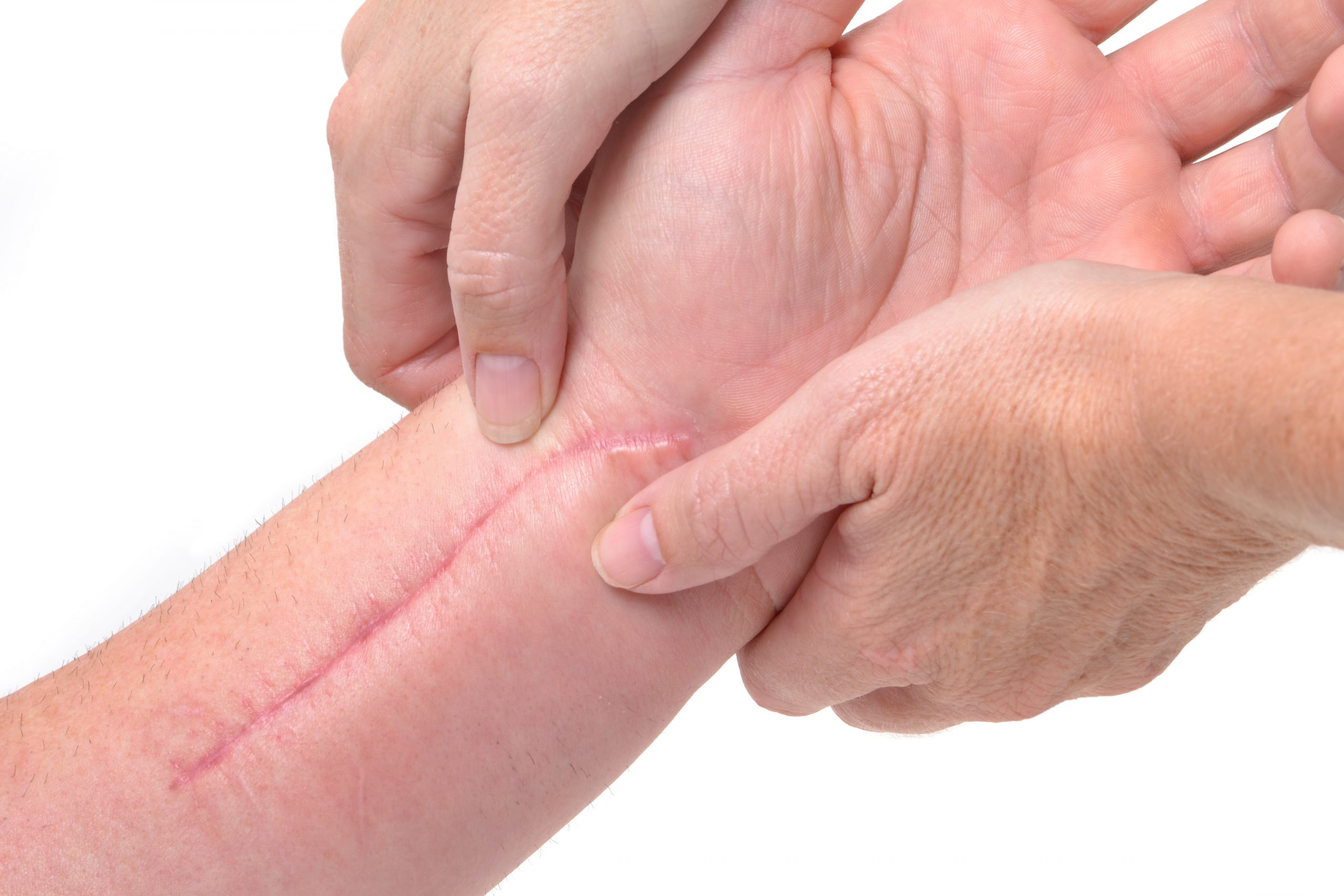 Scar work - treatment for scars